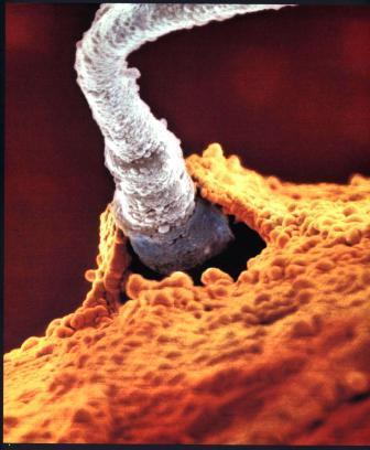 Фото плода: сперматозоид